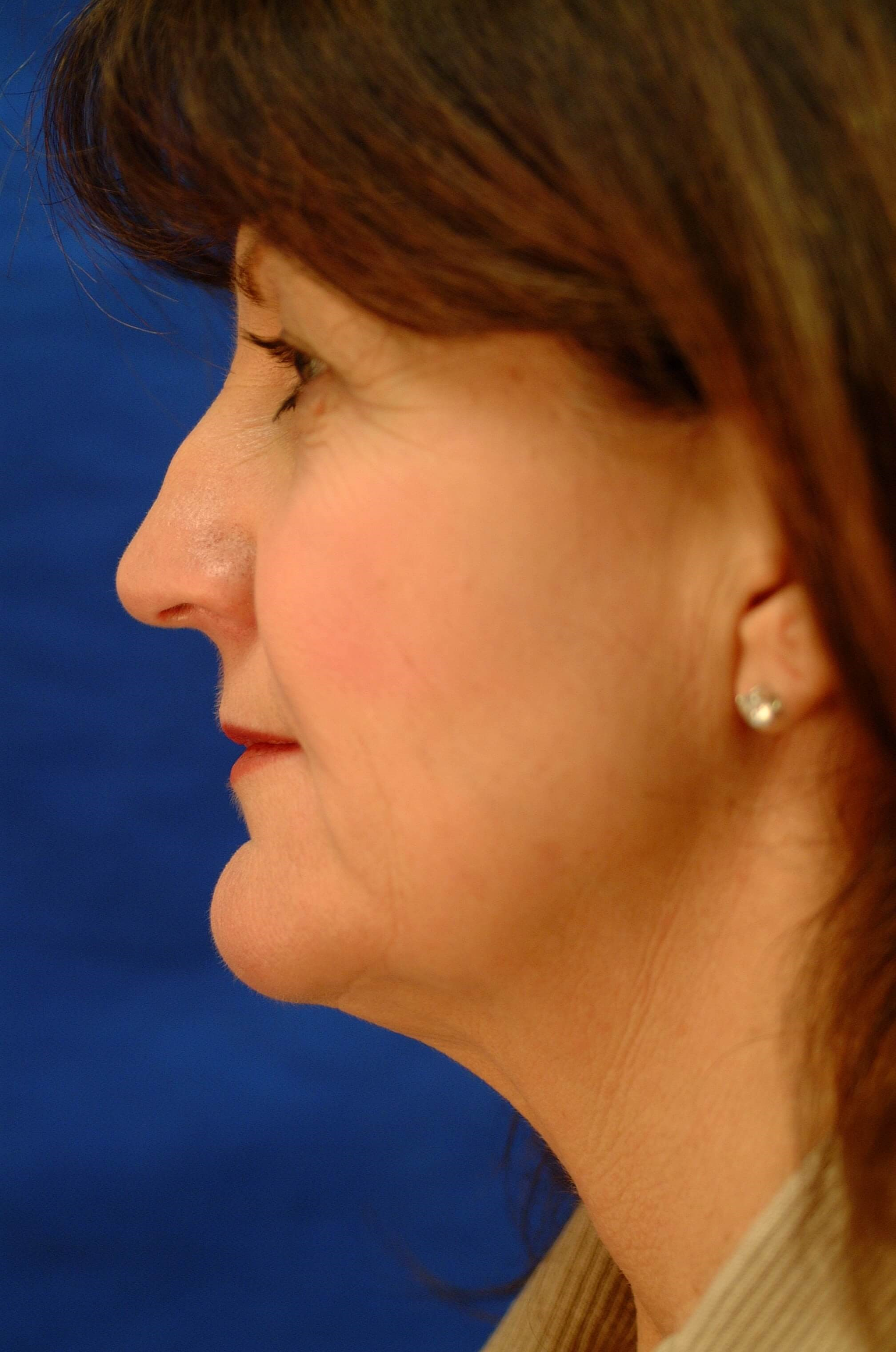 Newport Facelift Rhinoplasty Side View Before