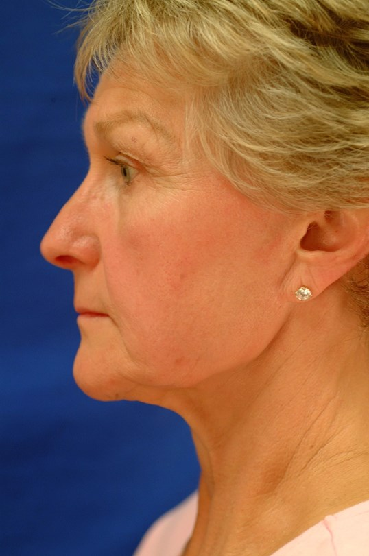 Brow/Facelift, Bleph and Rhino Side View Before