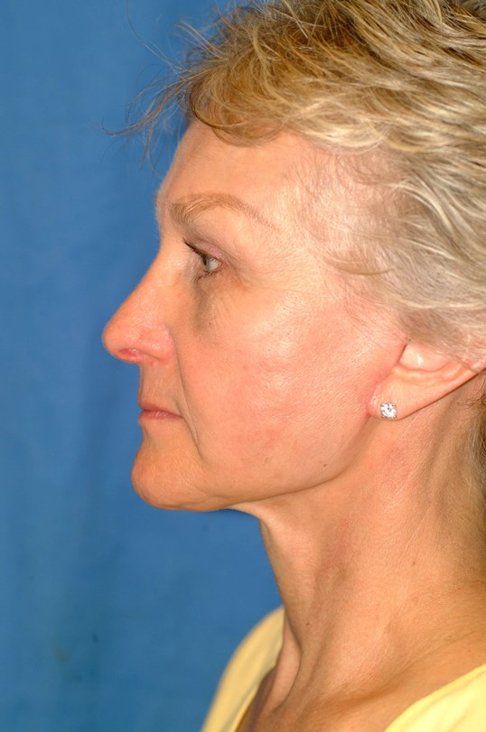 Brow/Facelift, Bleph and Rhino Side View After