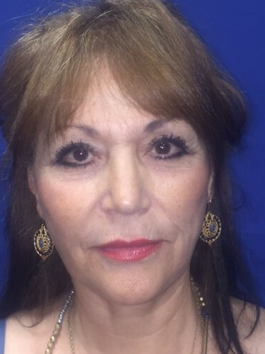 Newport Beach Face/Brow Lift Front View After