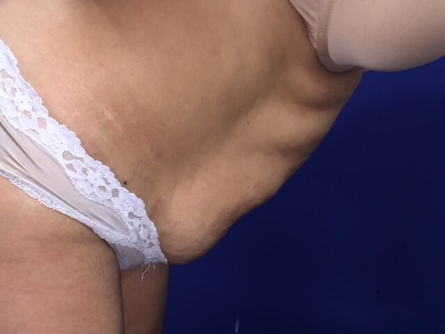 Newport Beach Tummy Tuck Before Side View Flexing