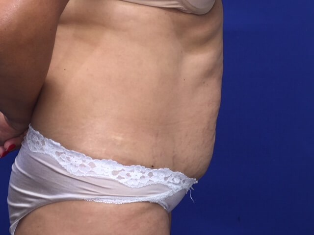 Newport Beach Tummy Tuck Before Side View