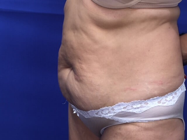 Newport Beach Tummy Tuck Oblique View Before