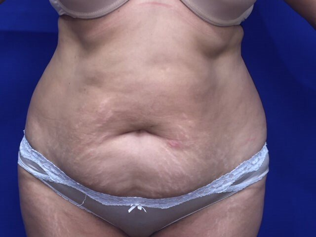 Newport Beach Tummy Tuck Before Front View