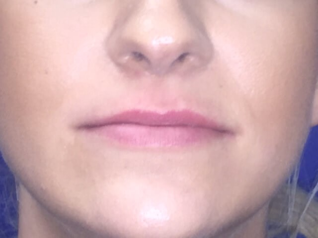 Restylane Defyne Lip Injection Before