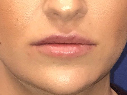 Restylane Defyne Lip Injection After