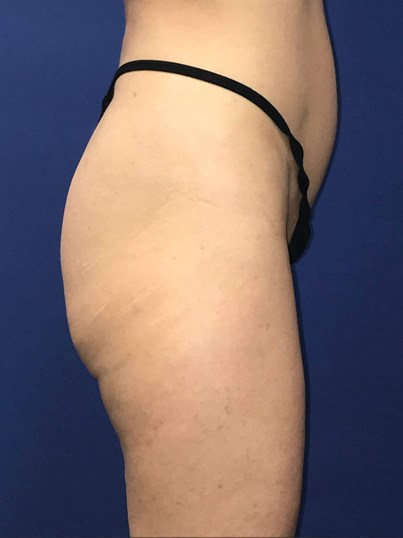 Newport Beach Buttocks Implant Before Side View