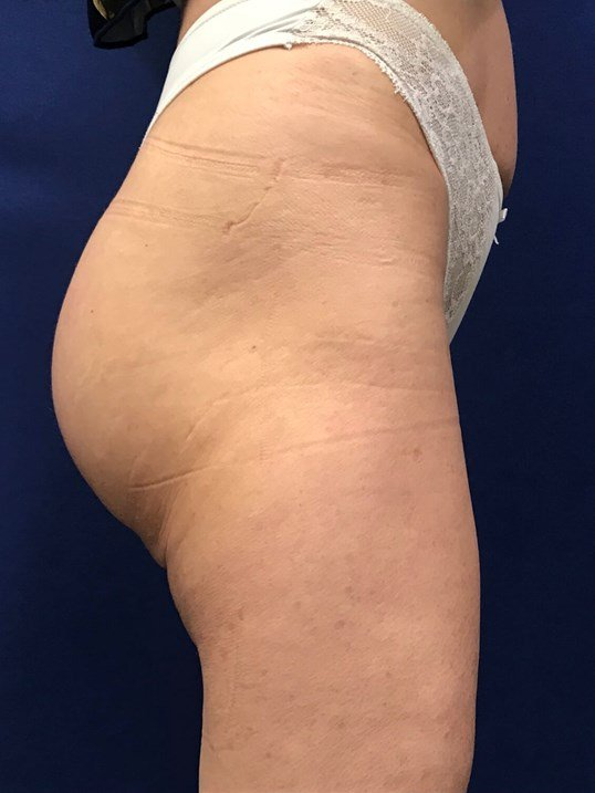 Newport Beach Buttocks Implant After Side View