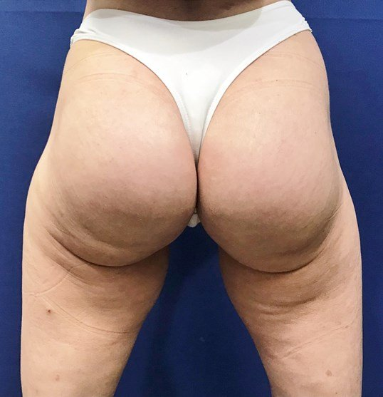 Newport Beach Buttocks Implant After Back View