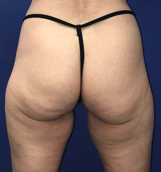 Newport Beach Buttocks Implant Before Back View