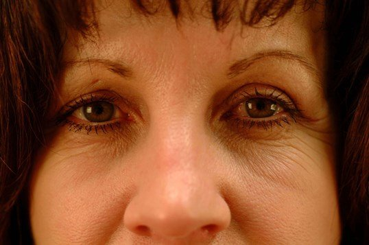 Newport Browlift Rhinoplasty After Front View