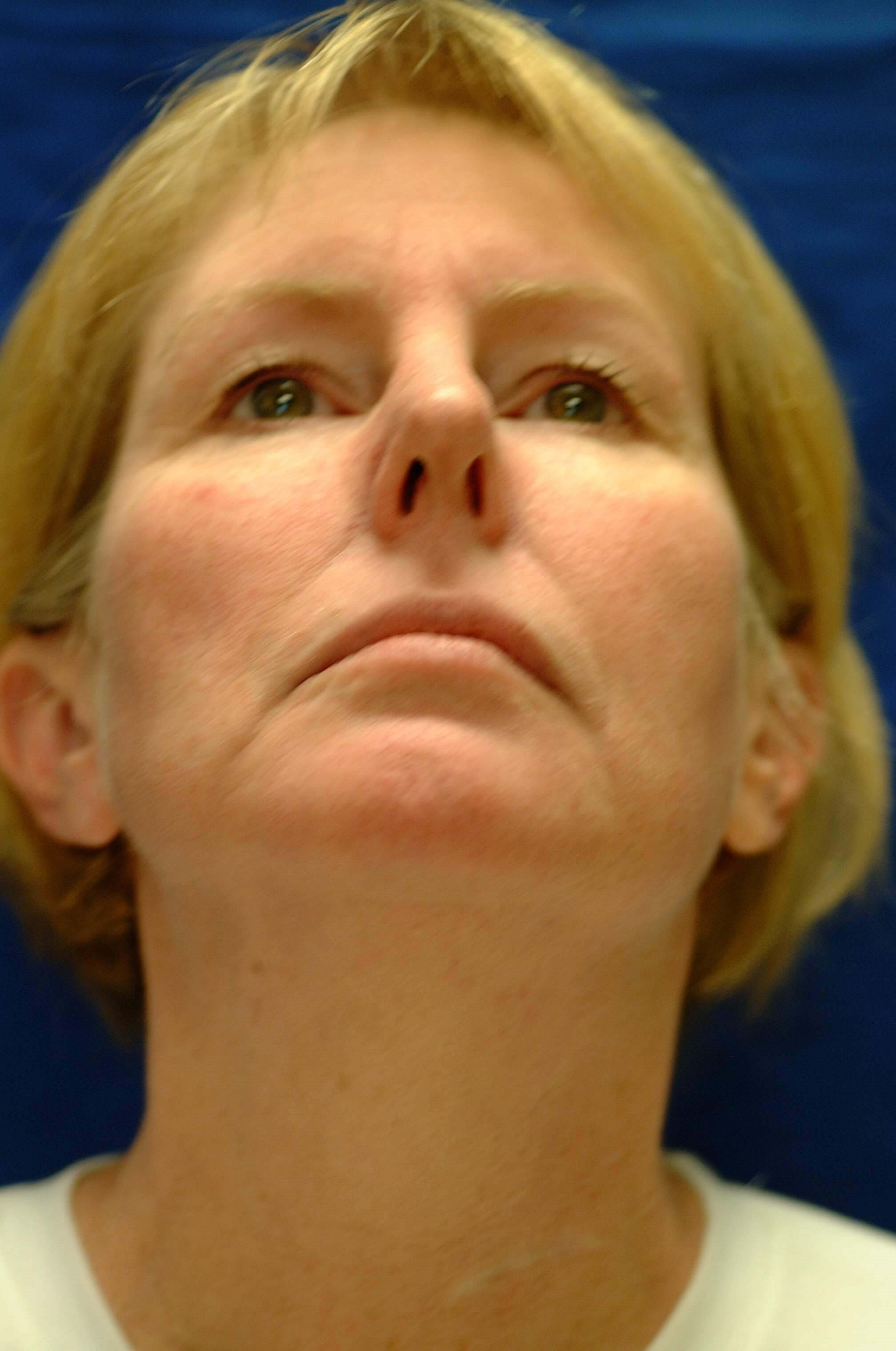 Newport Facelift Rhinoplasty Worms Eye View Before