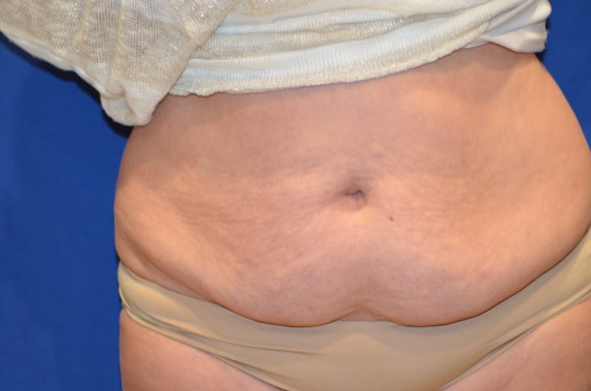 Newport Beach Tummy Tuck Lipo Before Front View