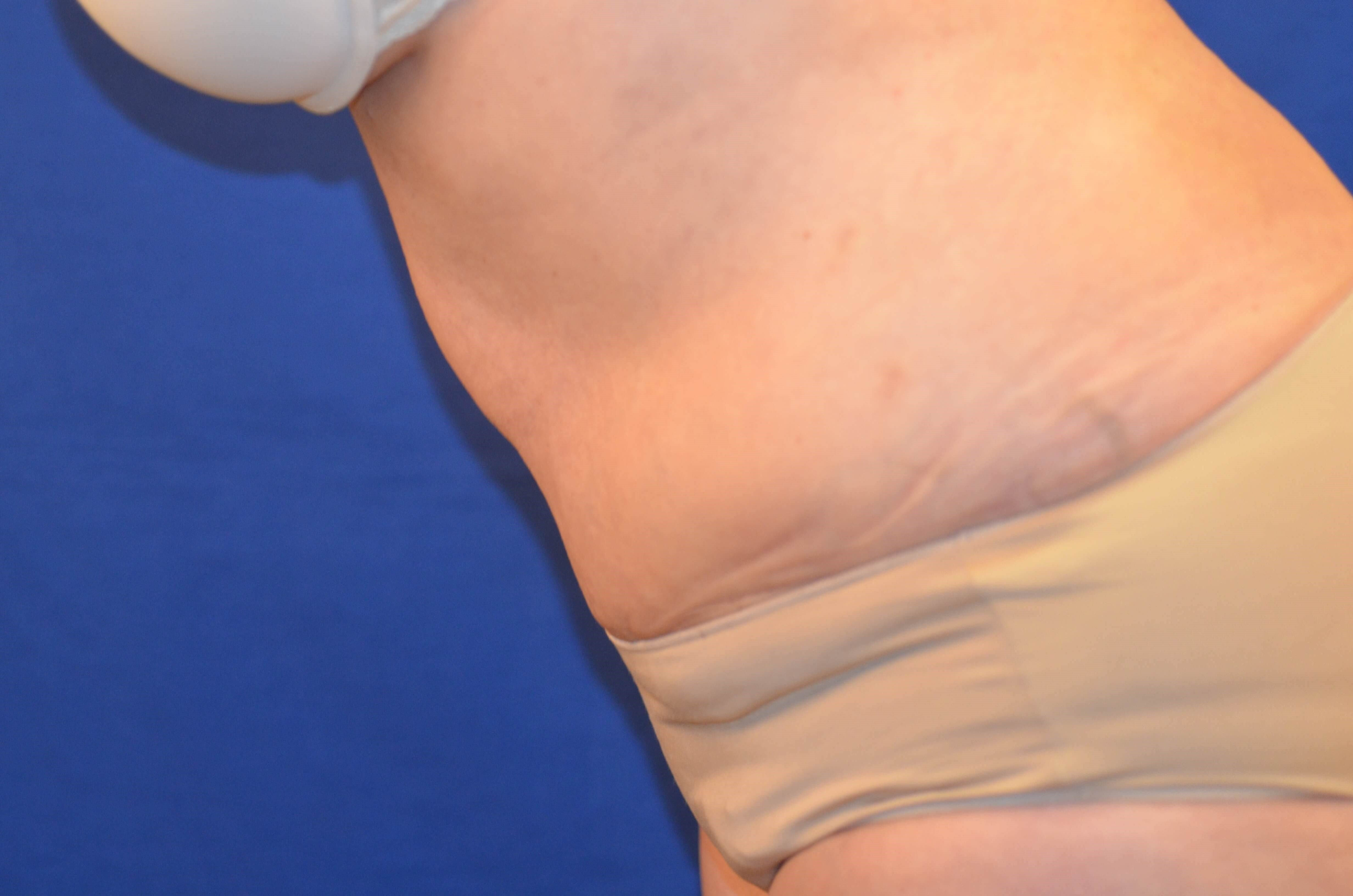 Newport Beach Tummy Tuck Lipo After Side View Flexing
