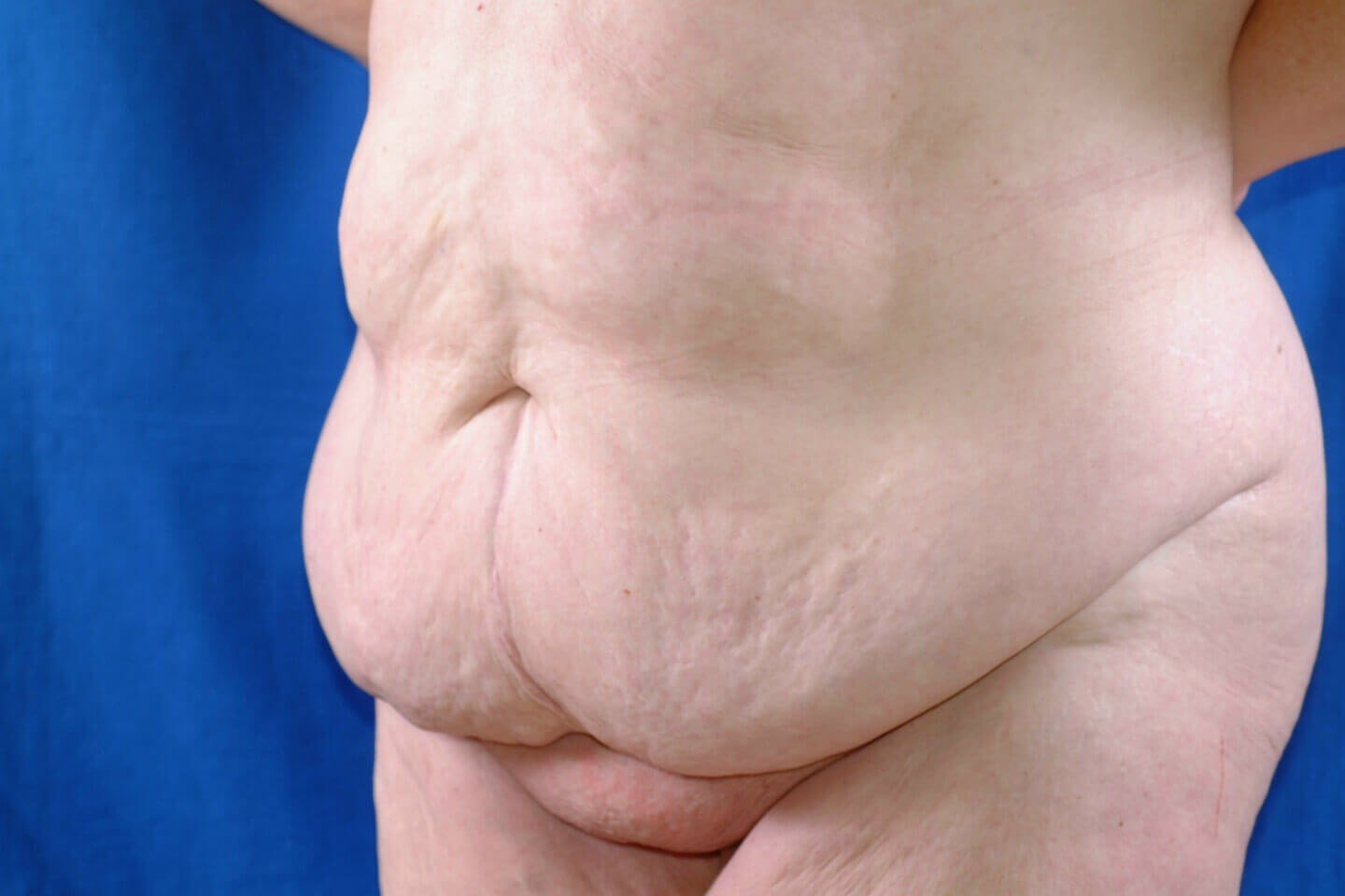Newport Beach Tummy Tuck Lipo Oblique View Before