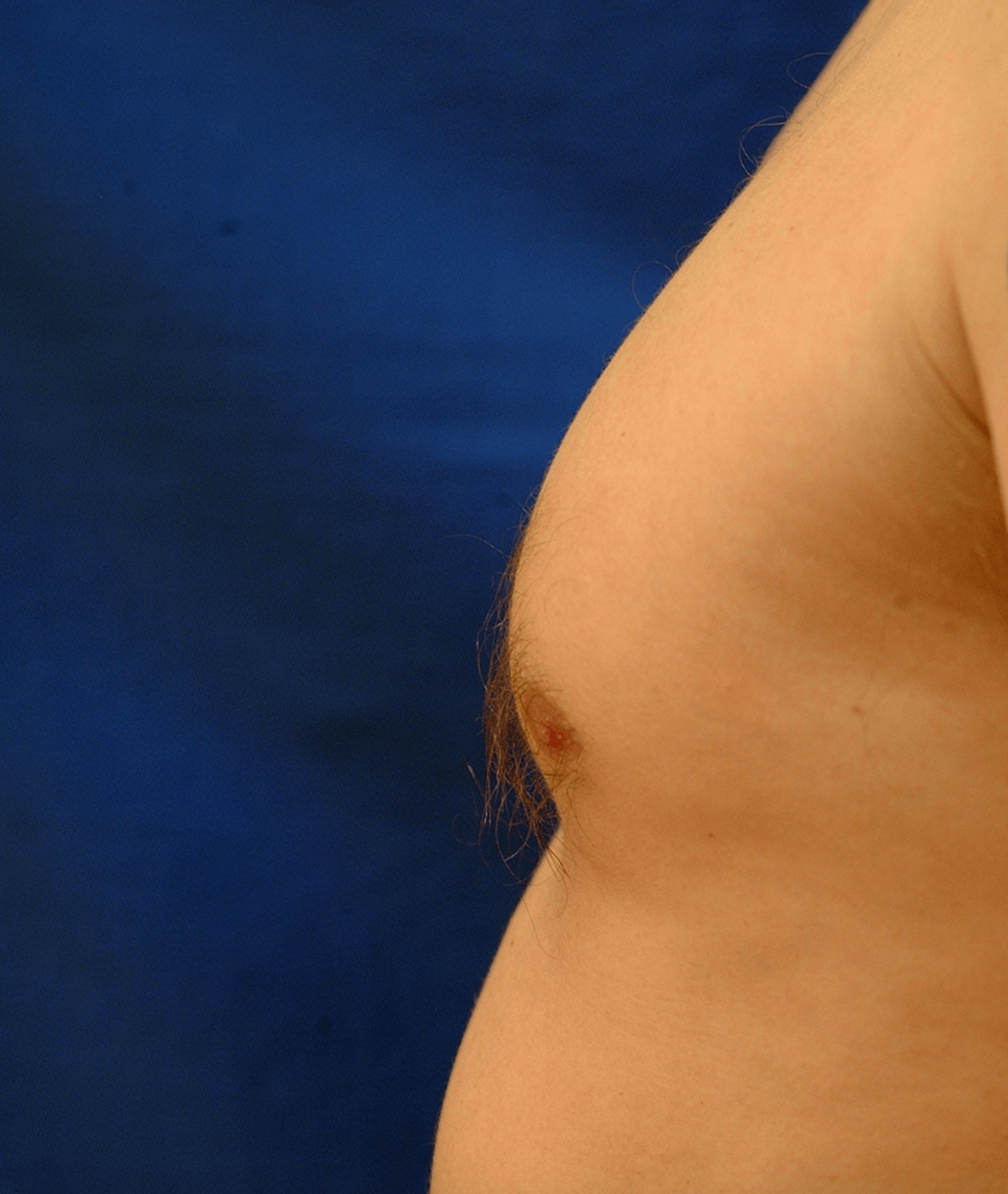 Newport Beach Gynecomastia Side View Bent Before