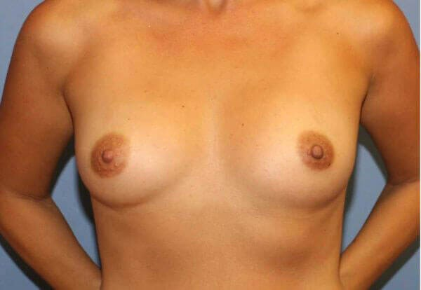 Breast Aug Before and After Before