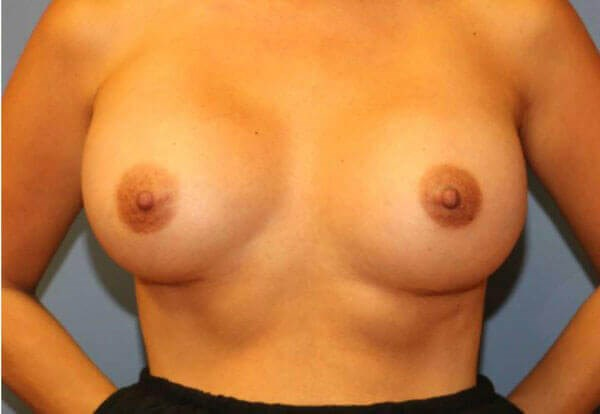 Breast Aug Before and After After