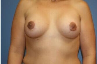 Tuberous Breast Correction After