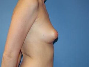 Tuberous Breast Correction Before