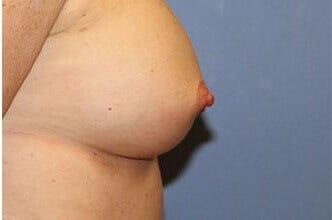 Nipple Correction After