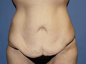 After-Weight Loss Surgery Before