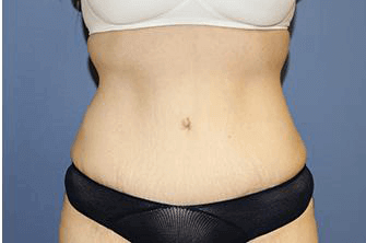 After-Weight Loss Surgery After