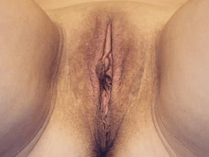 Before and After Labiaplasty Before