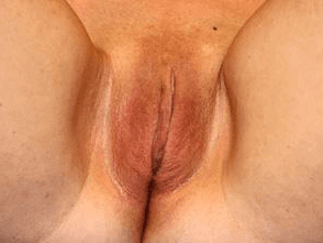 Labiaplasty Before and After After