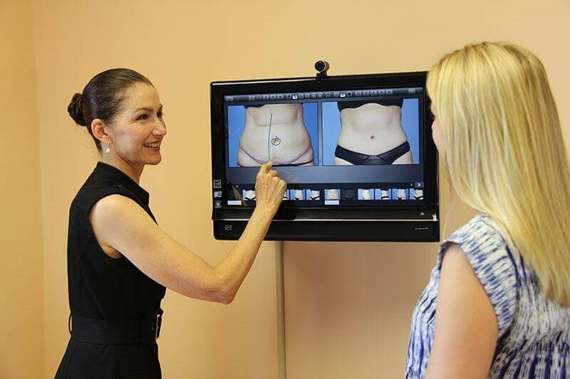 Dr. Heather Furnas explaining a tummy tuck to a patient