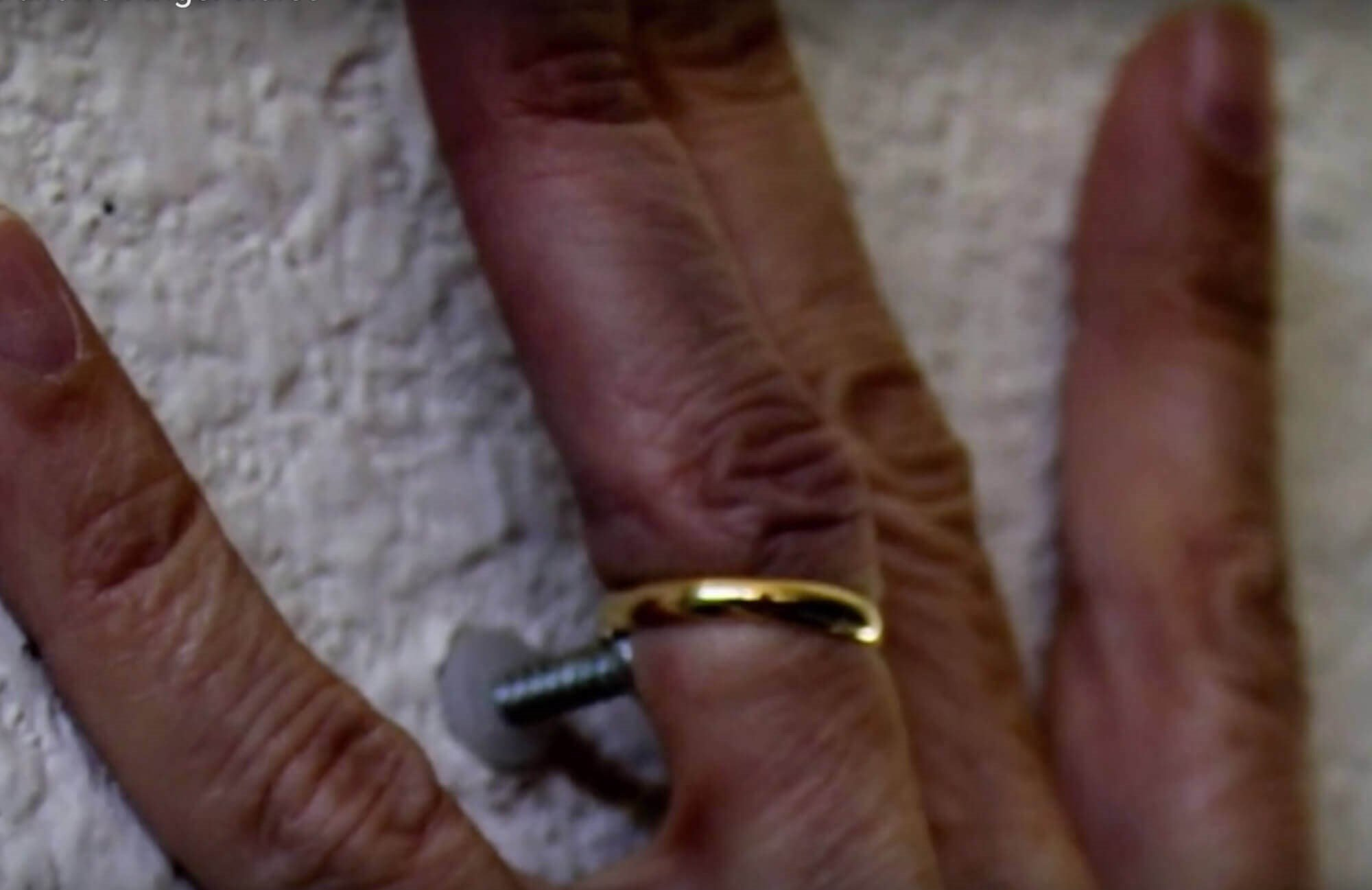 Ring Avulsion Mechanism, wedding ring catches on nail