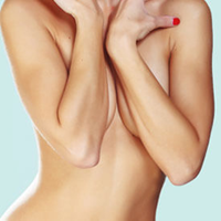 Tuberous Breast Correction