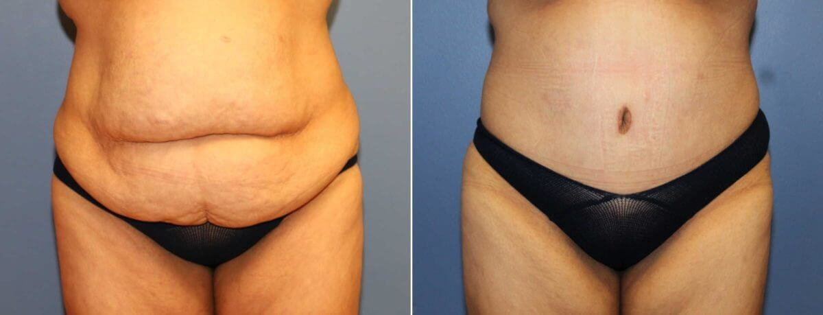 After Weight Loss Tummy Tuck Before