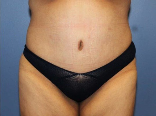 After Weight Loss Tummy Tuck After