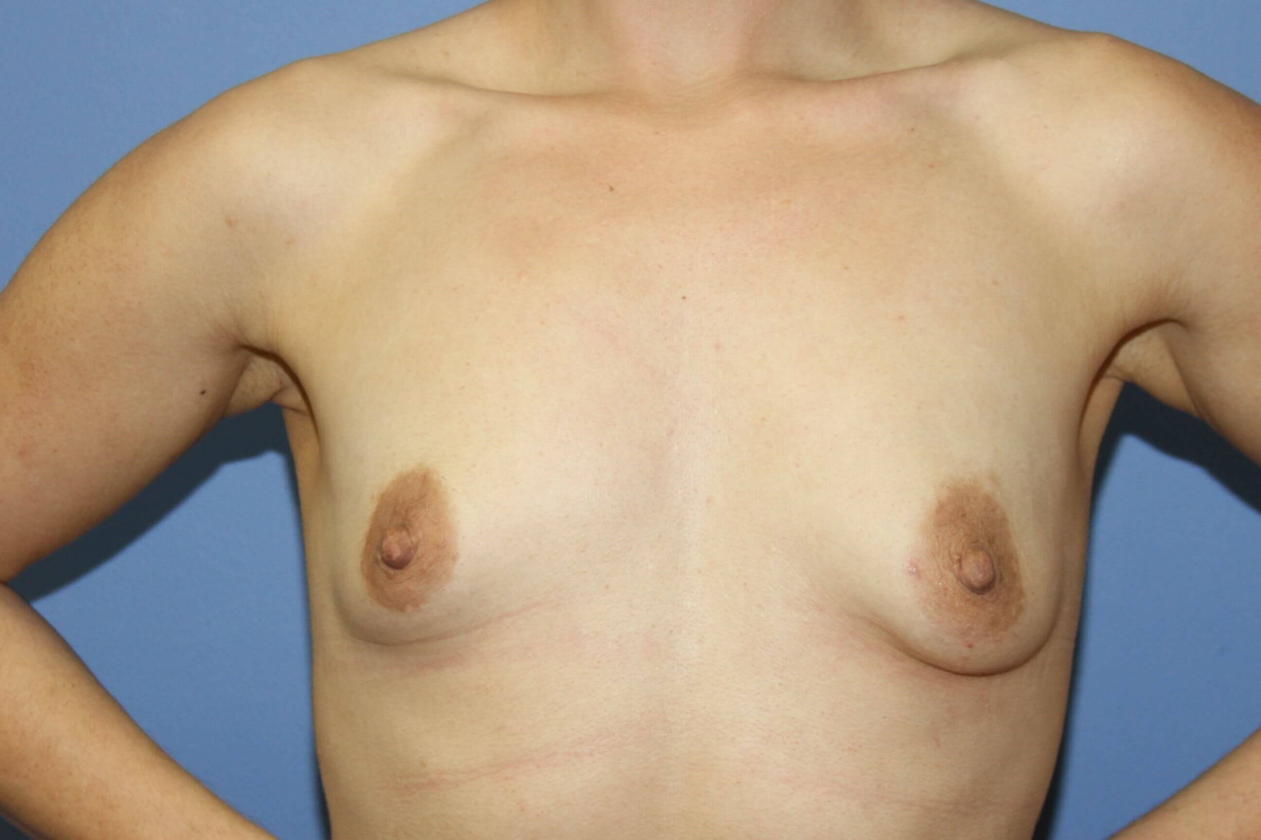 Tuberous breast before Before