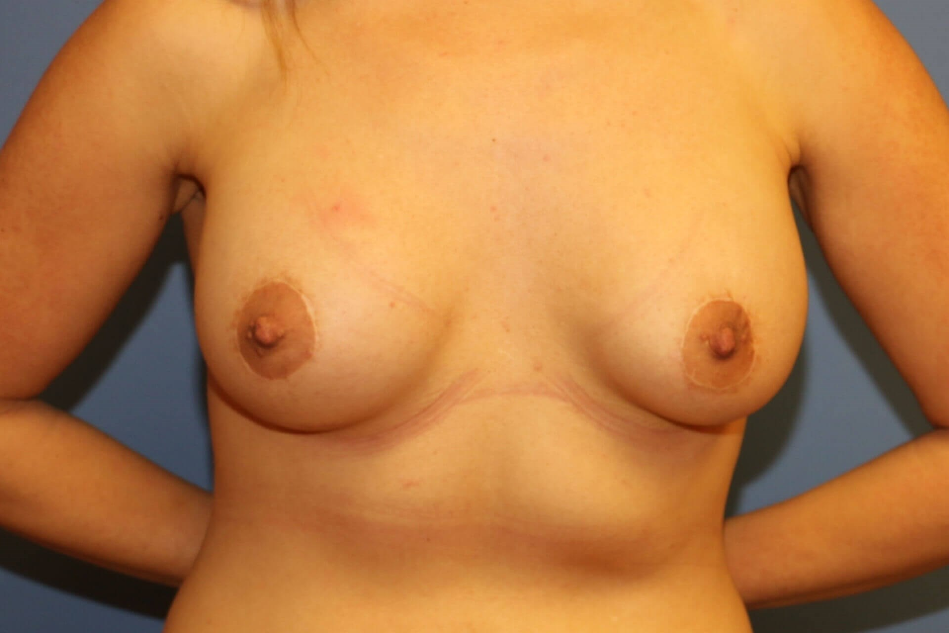 Tuberous breast before After