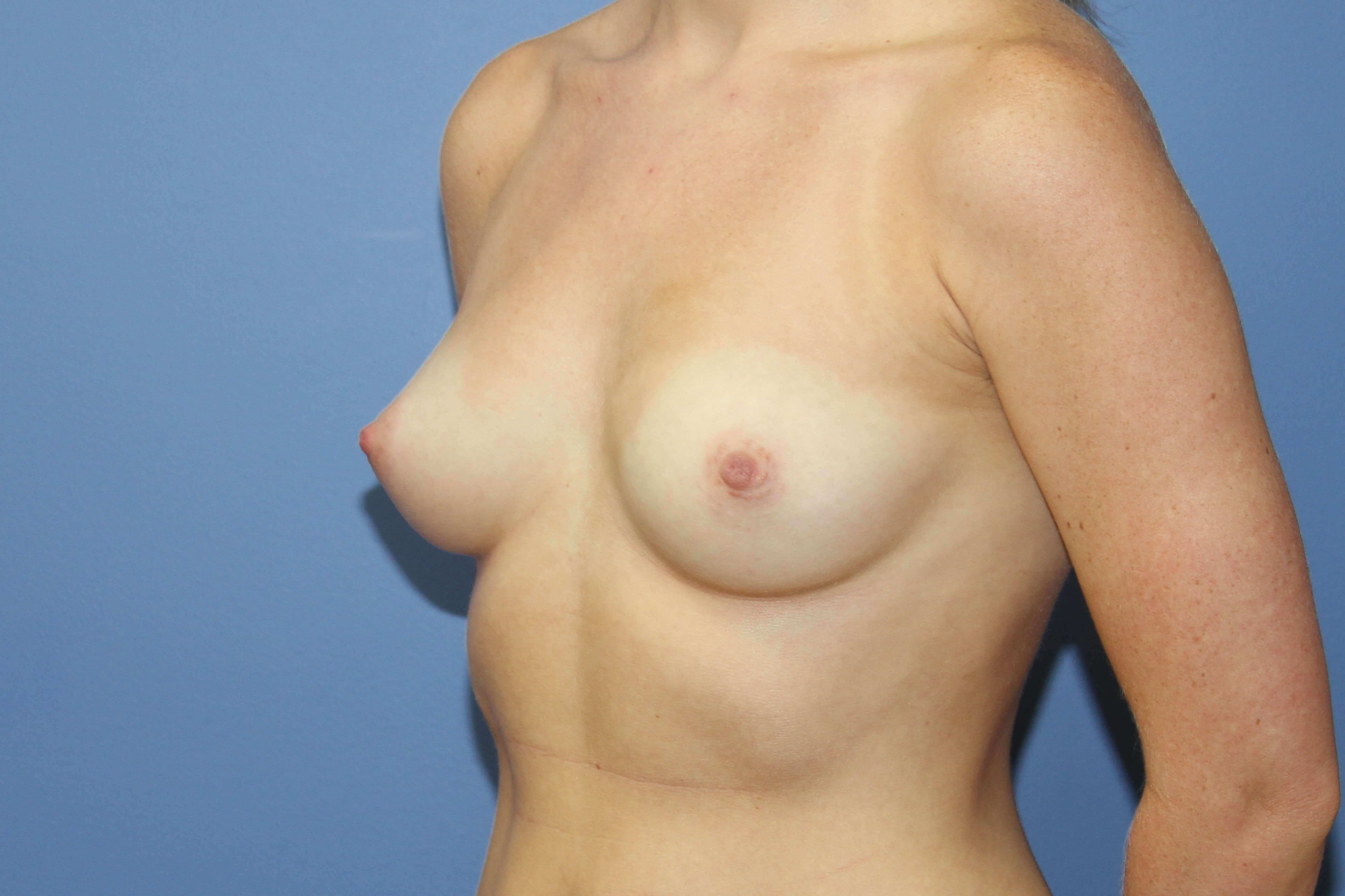 Oblique view breast aug Before