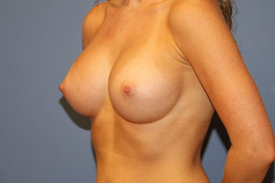 Oblique view breast aug After