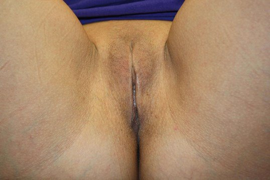 Front view labiaplasty After