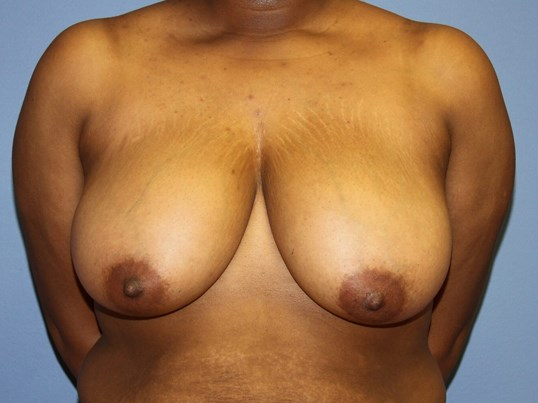 Breast Reduciton Before