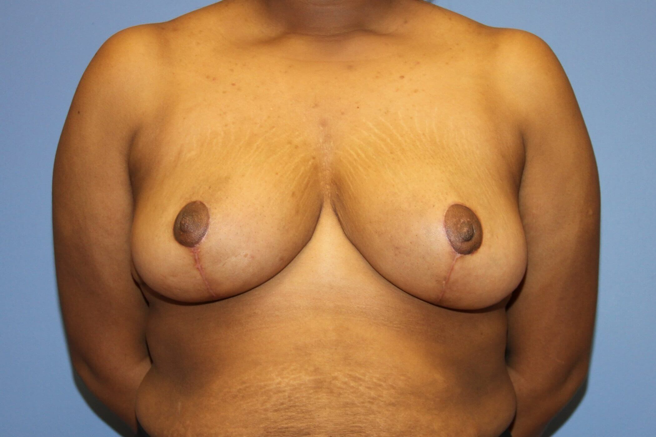 Breast Reduciton After