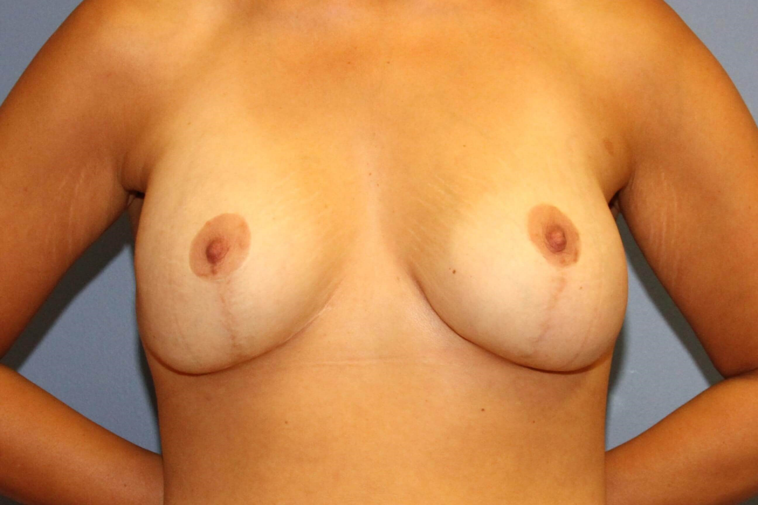 Revision breast augmentation After
