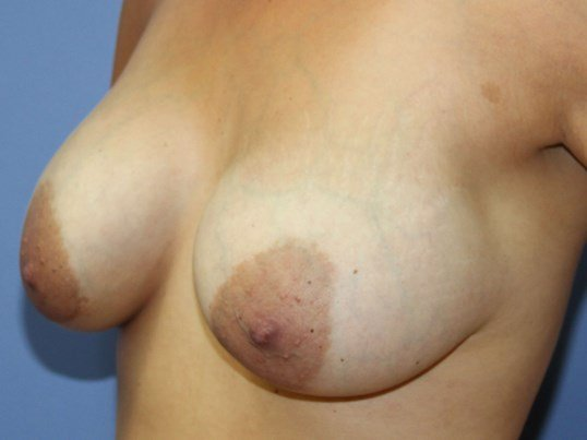 Breast lift , smaller implants Before