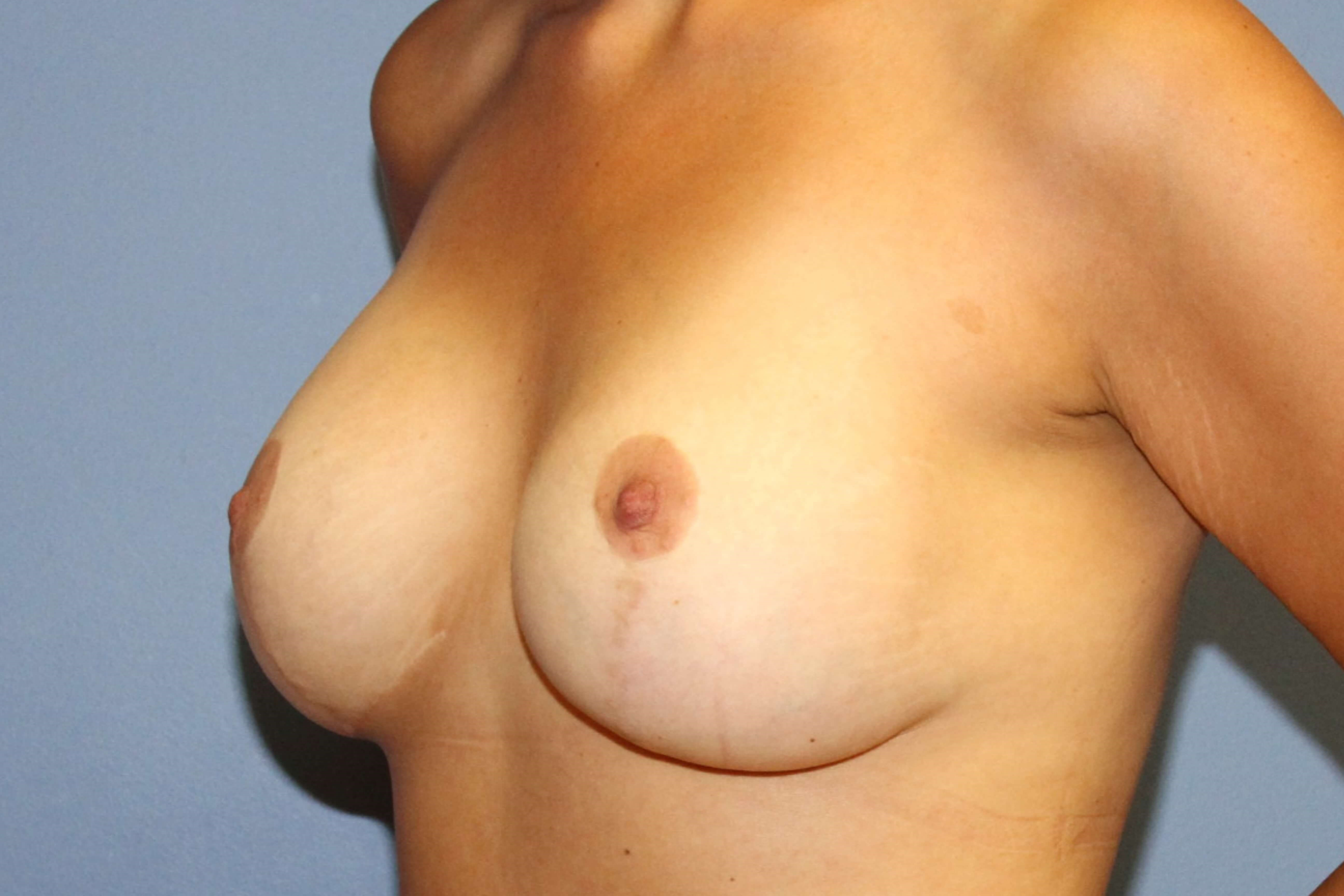 Breast lift , smaller implants After