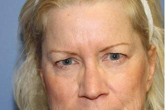 Eyelid Lift Before and After Before