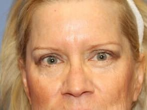 Eyelid Lift Before and After After