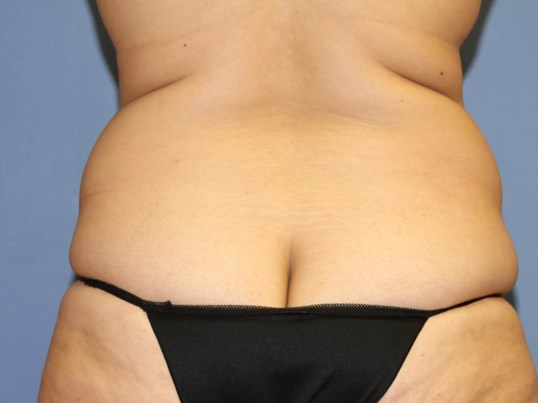 Liposuction of the back Before