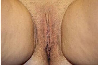 Before and After Labiaplasty After