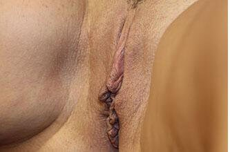 Labiaplasty Before and After Before