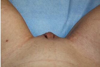 Labiaplasty Results After